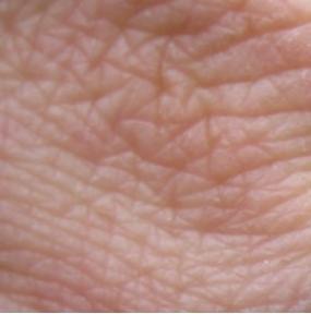 Wrinkledskin